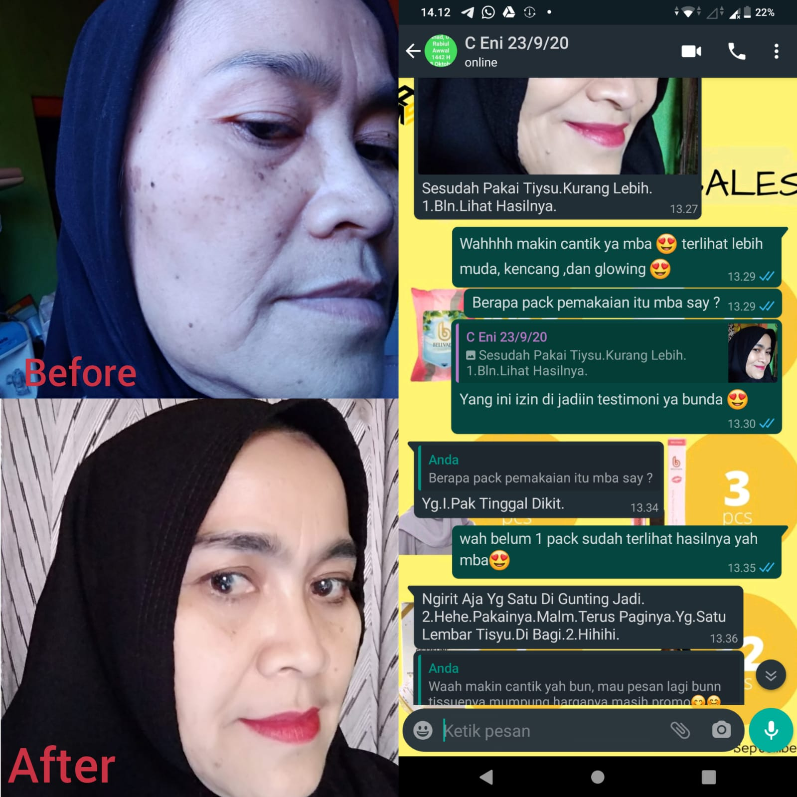 before-after.jpeg